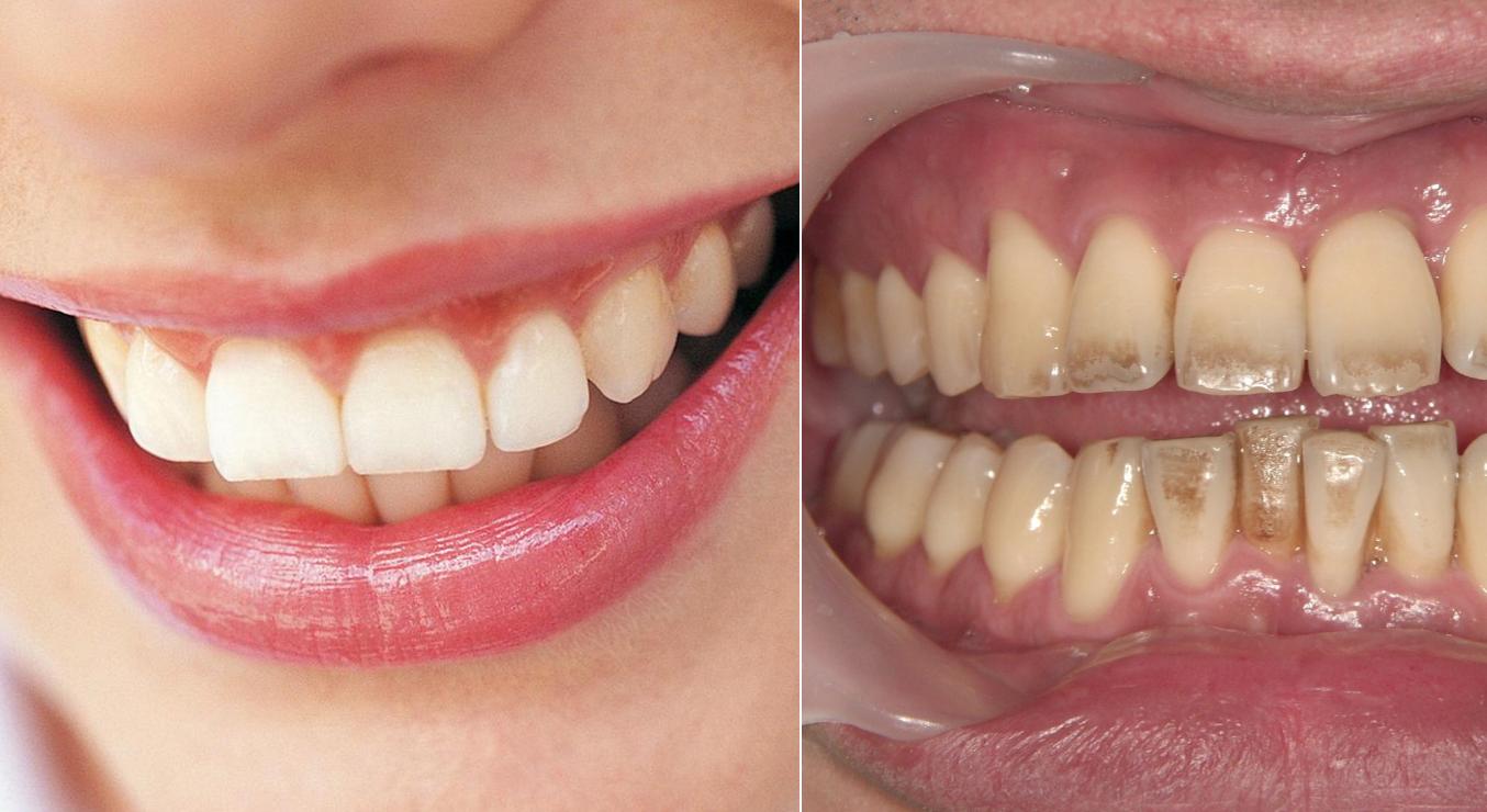 【警告】数ヶ月続くと歯が腐っていく!?歯医者が絶対禁止する『歯がボロボロになるNG習慣』が予想外良すぎる….