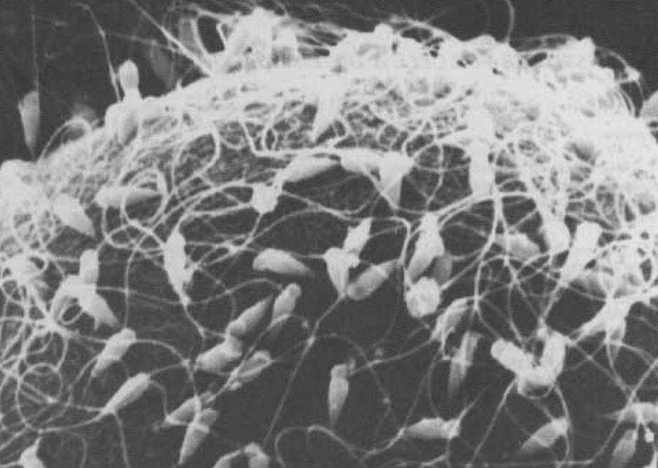 人間の精子を水槽で育てたらどうなるのあ!?衝撃的な結果に一同唖然。。。