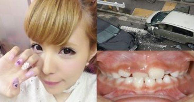 【※衝撃※】益若つばさの歯・顔が交通事故でぐちゃぐちゃに・・・!???