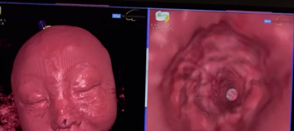 【※衝撃】9歳になる息子はなんの理由もなくよく笑つた。彼のMRIをみた医師たちは、彼の脳の中にあるものを見て衝撃を受けた!!