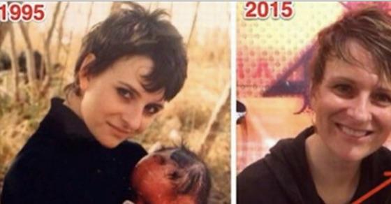 奇病のため隠すように育った赤ちゃん。22年後、大人になった彼女の姿に驚愕!