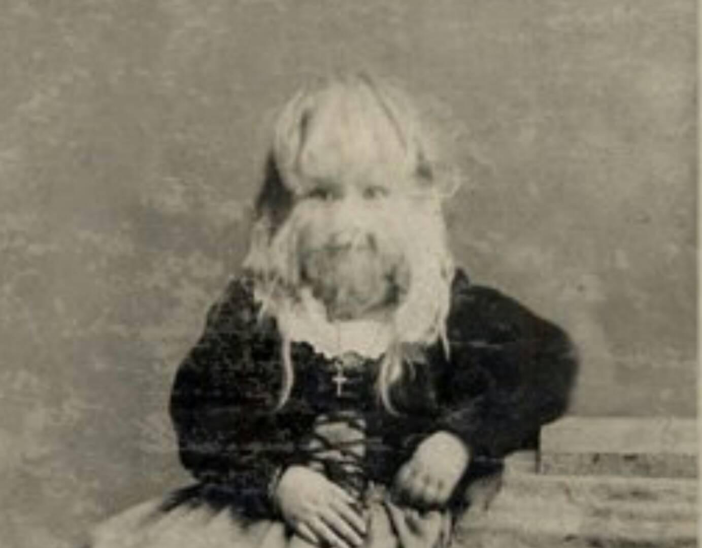 5歳になった娘の顔を両親は識別できなかった。それから娘にしたことが、非道極まりなかった。