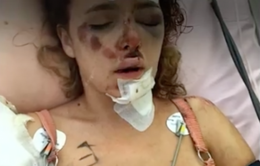 【閲覧注意】トラックに頭部を潰された女性。1分後、見知らぬ人が彼女の手を掴んだ。その後彼がしたことが世界中で話題に!!