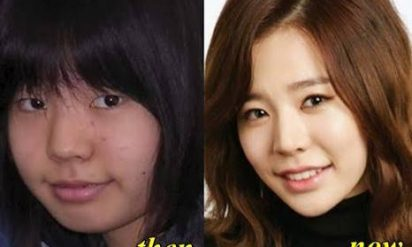 【衝撃】K-POPアイドルは皆整形しているの⁉︎昔の顔と違いすぎると話題に!