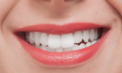 アルミホイルで歯を1時間覆ってみたら、1時間後目を疑った。。。