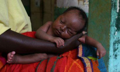 【衝撃】奇病のため隠されるように育てられた赤ちゃん。22年後の彼女の姿が話題に!!
