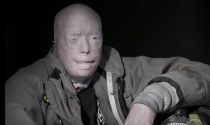 男性は100万ドル以上をかけて26時間の手術に挑んだ。その後、彼の顔は信じられない変化を遂げることに!!