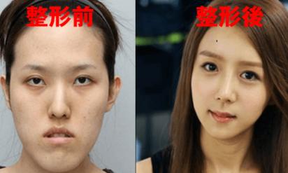 【衝撃!韓国美容はもはや完全に別人になる!?】海外も驚く韓国の美容整形ビフォーアフター画像!→渡韓してまで整形をする日本人が急増するワケがわかる!?