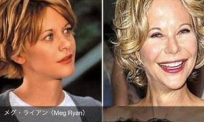 【閲覧注意】「整形中毒」といわれている有名なハリウッド女優まとめ!もともと綺麗なのに、どうして‥