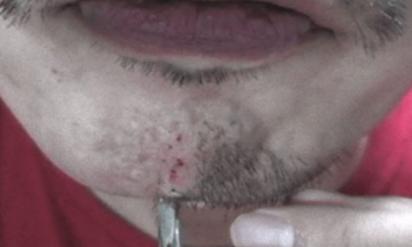 あごひげをピンセットで6年間抜き続けた男性⇒現在のあごの状態がヤバすぎる…。