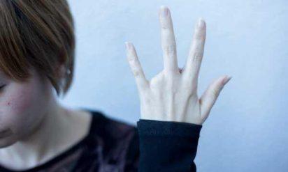 【衝撃】究極の身体改造「アンピュテーション(切断)」に挑む日本人女性がスゴすぎる‥