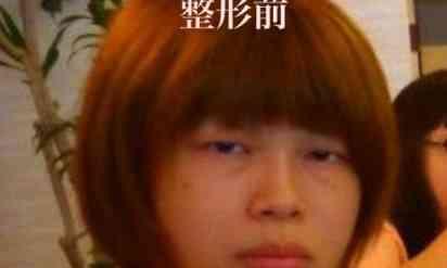 【激ヤバ】700万円かけて整形した日本人コスプレイヤー!ビフォーアフターが完全に別人で美人すぎ!!